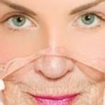 Prerano starenje kože - Prerano starenje kože