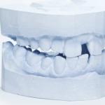 Zubobolja - Zubobolja